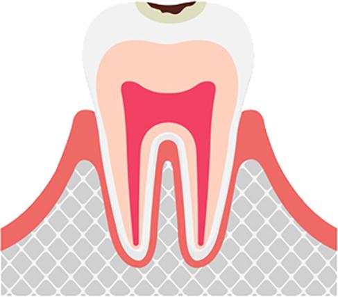 虫歯の進行 エナメル質の虫歯