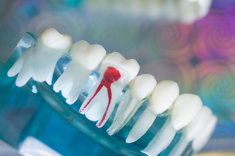 根管治療 虫歯