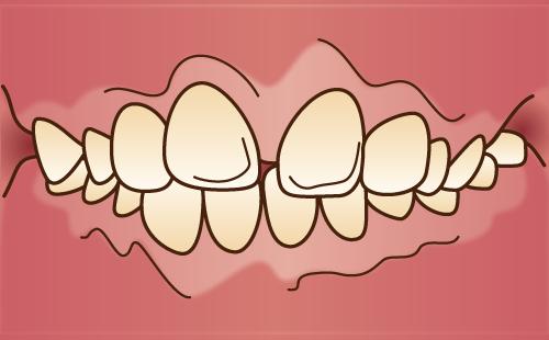 上顎前突 出っ歯