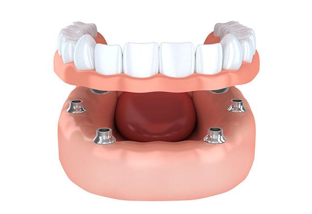 入れ歯とインプラントの性能「インプラントオーバーデンチャー」