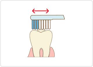 歯磨き指導 小児歯科 虫歯予防