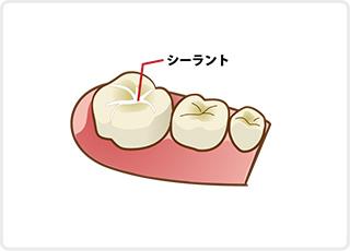 シーラント 小児歯科
