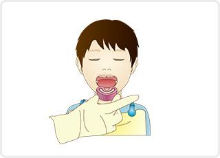 フッ素塗布 小児歯科