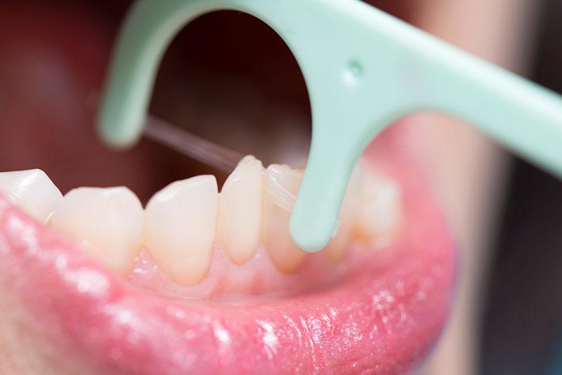 歯のクリ―ニング 虫歯予防