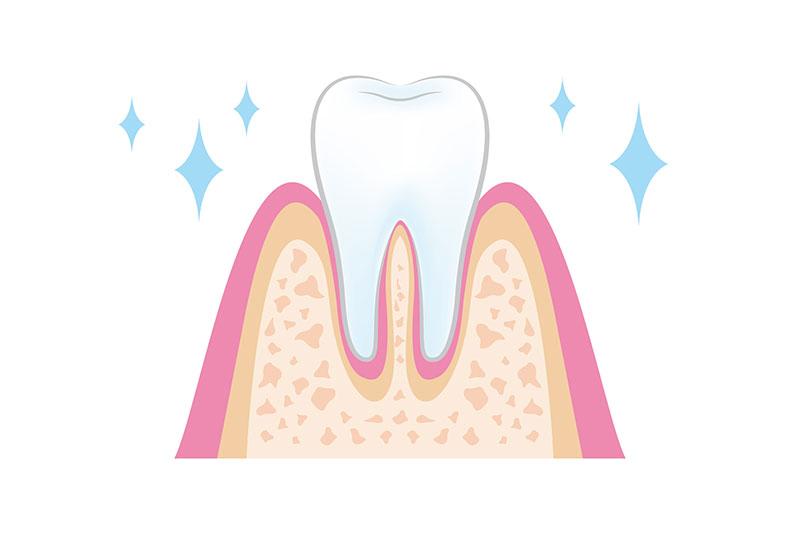 フッ素塗布 虫歯予防